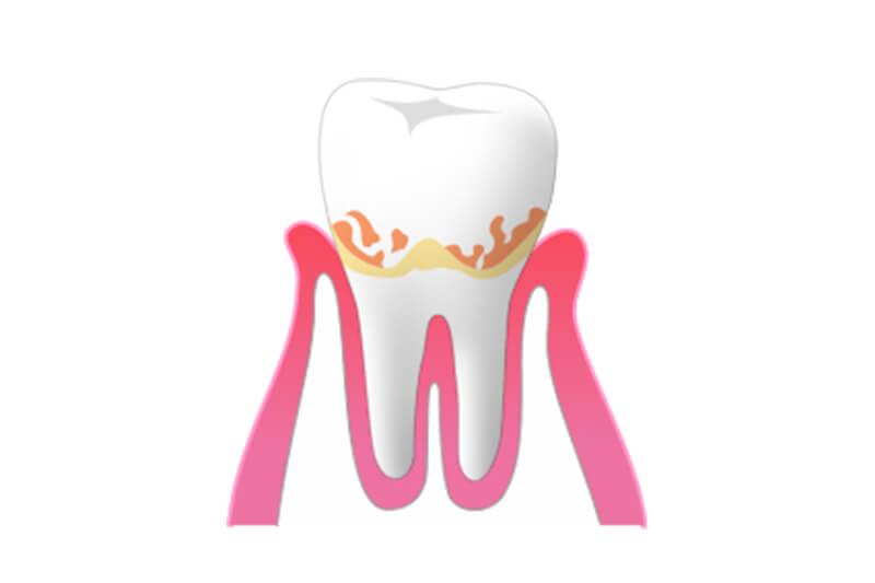1.歯肉炎
