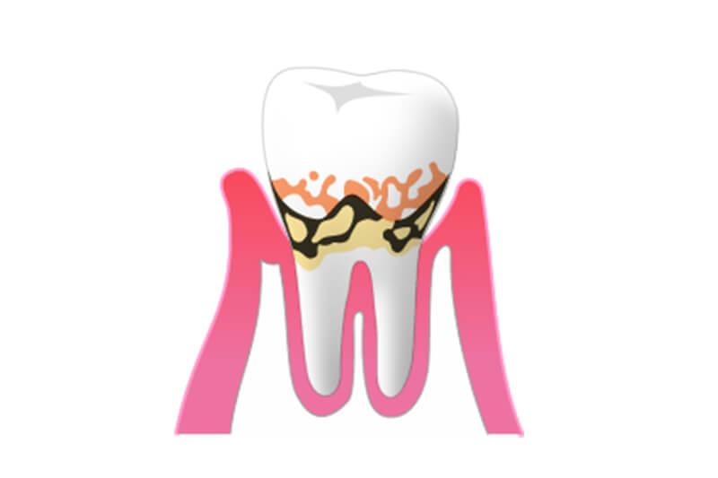 2.軽度歯周炎